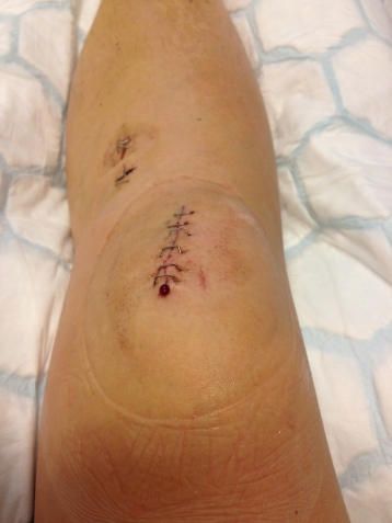 Three days after surgery. A hell of a good job I would say.
