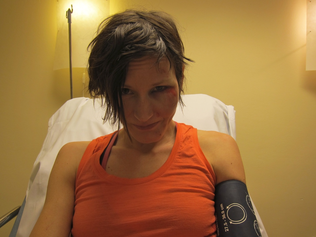 Bruised but not (completely) broken. Hope to see you as soon as possible in the backcountry! Photo by Martin.