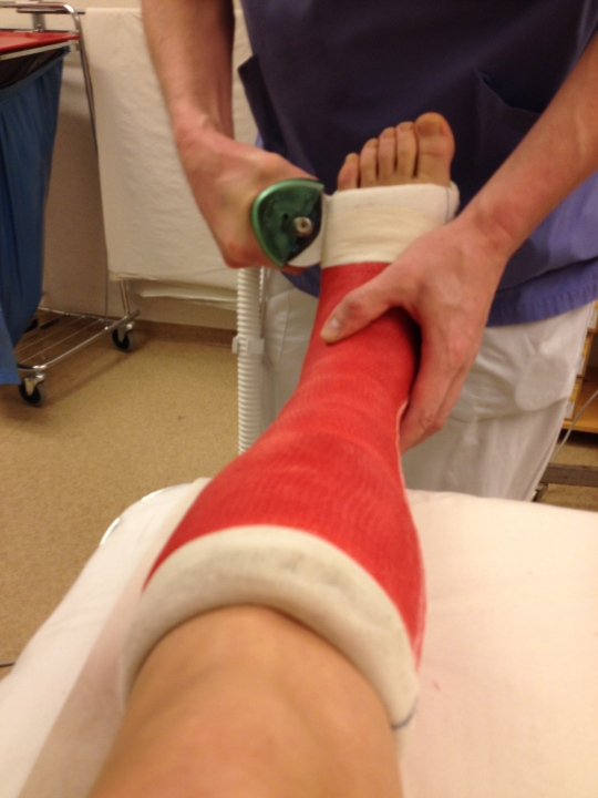 Removing the old cast