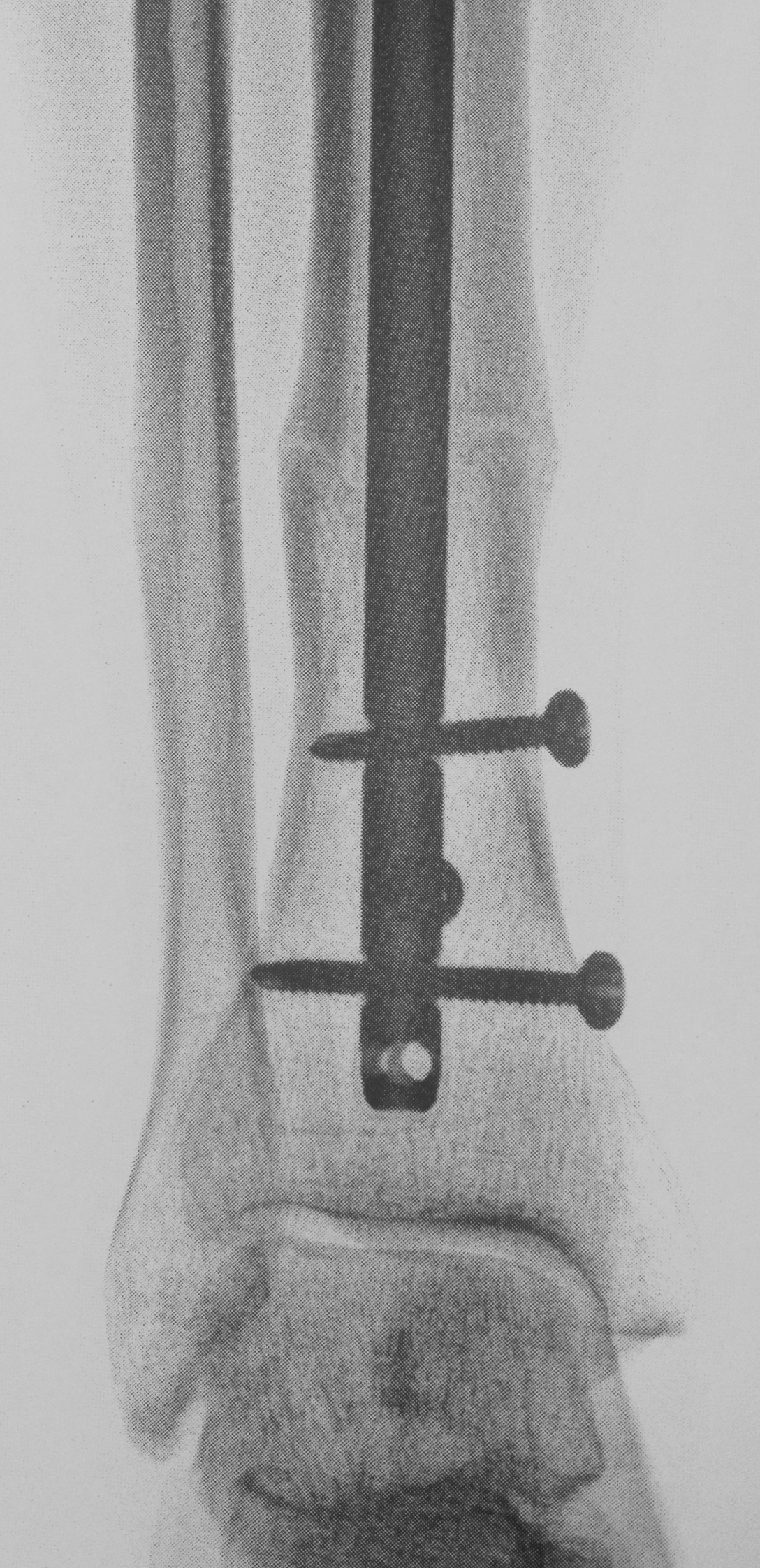 Screws soon to be removed